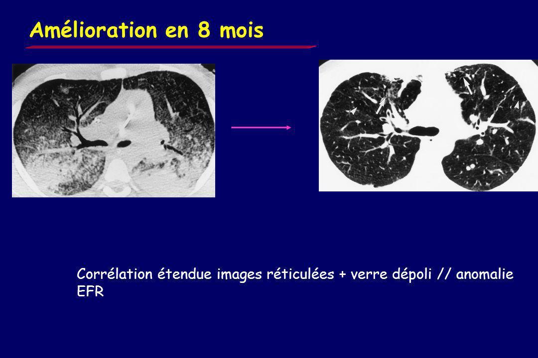 Bronchectasies/emphyseme Aspect réticulé Verre dépoli