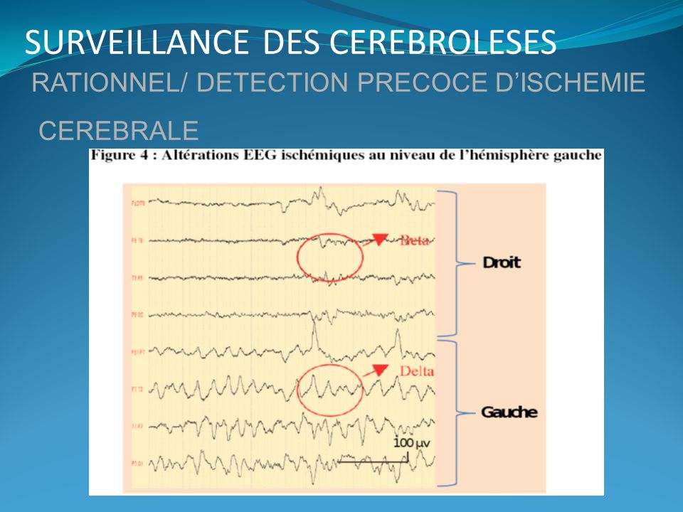SURVEILLANCE DES CEREBROLESES RATIONNEL/ DETECTION PRECOCE DISCHEMIE CEREBRALE