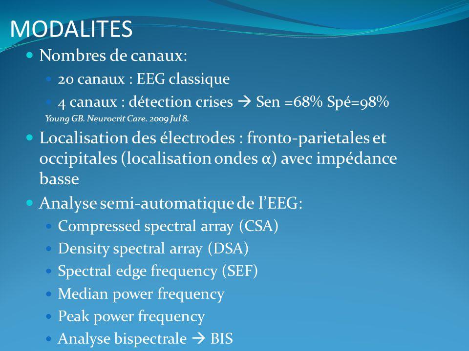 MODALITES Nombres de canaux: 20 canaux : EEG classique 4 canaux : détection crises Sen =68% Spé=98% Young GB. Neurocrit Care. 2009 Jul 8. Localisation