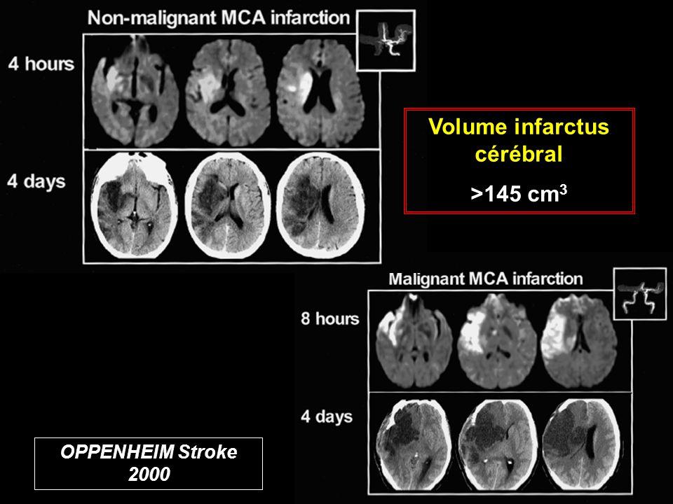 OPPENHEIM Stroke 2000 Volume infarctus cérébral >145 cm 3