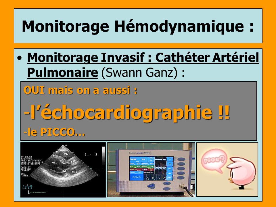 Monitorage Hémodynamique : Monitorage Invasif : Cathéter Artériel Pulmonaire (Swann Ganz) : OUI mais on a aussi : -léchocardiographie !! -le PICCO…