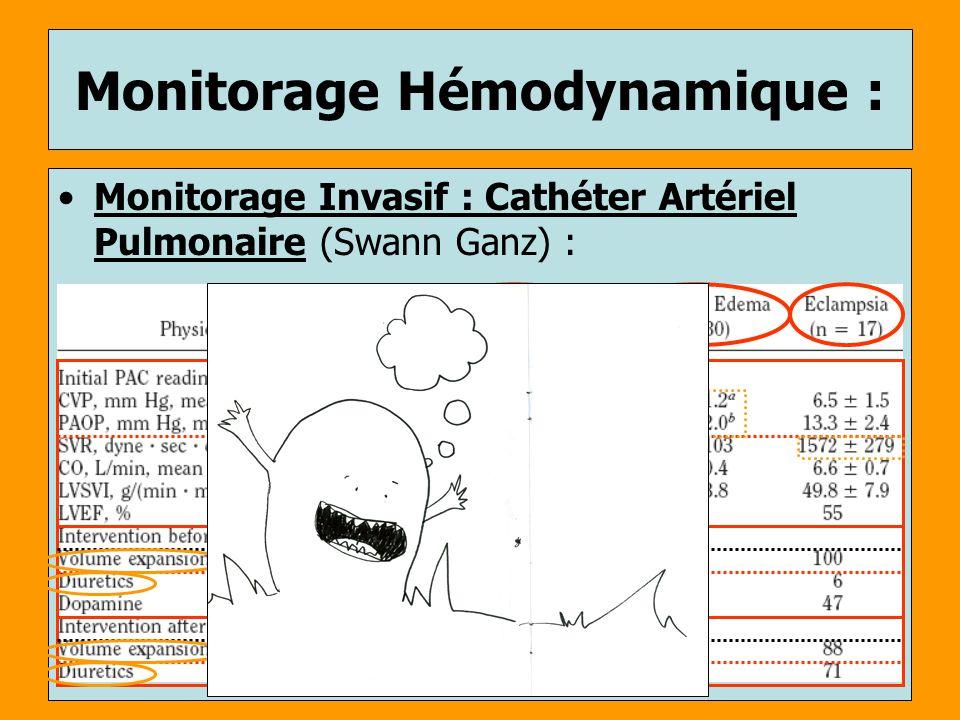 Monitorage Invasif : Cathéter Artériel Pulmonaire (Swann Ganz) : Monitorage Hémodynamique :