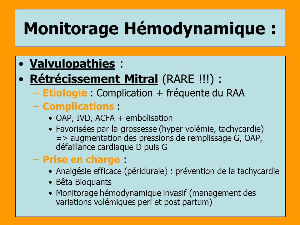 Monitorage Hémodynamique : Valvulopathies : Rétrécissement Mitral (RARE !!!) : –Etiologie : Complication + fréquente du RAA –Complications : OAP, IVD,