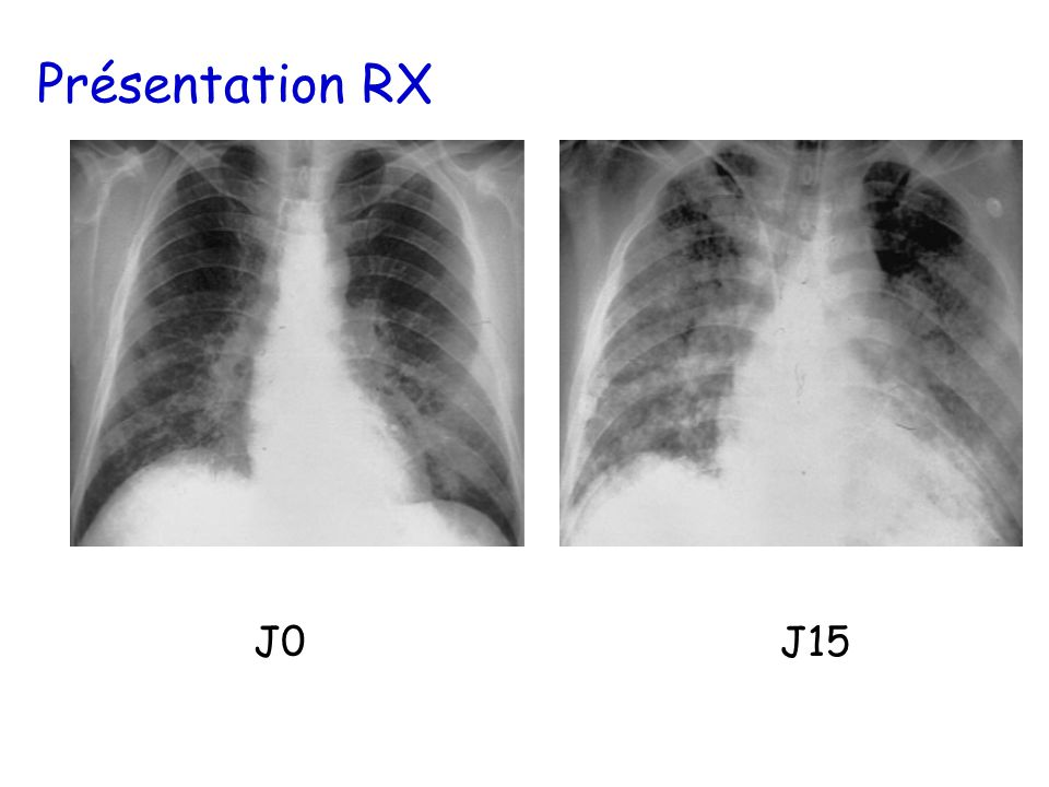 Présentation RX J0 J15