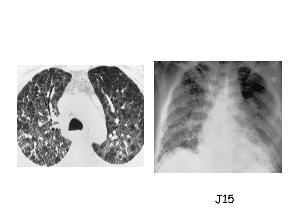 - Etude rétrospective (n = 2795 patients) - SDRA et VM > 7 jours + histologie - Exclusion : hémopathie maligne, VIH, corticoïdes au long cours, chimiothérapie - Autopsies (n = 60), OLB (n = 26) 25 pneumonies à CMV prouvées histologiquement - CMV seul dans 88% des cas Papazian et al.