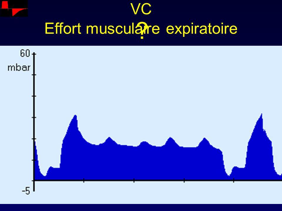 VC ? Effort musculaire expiratoire