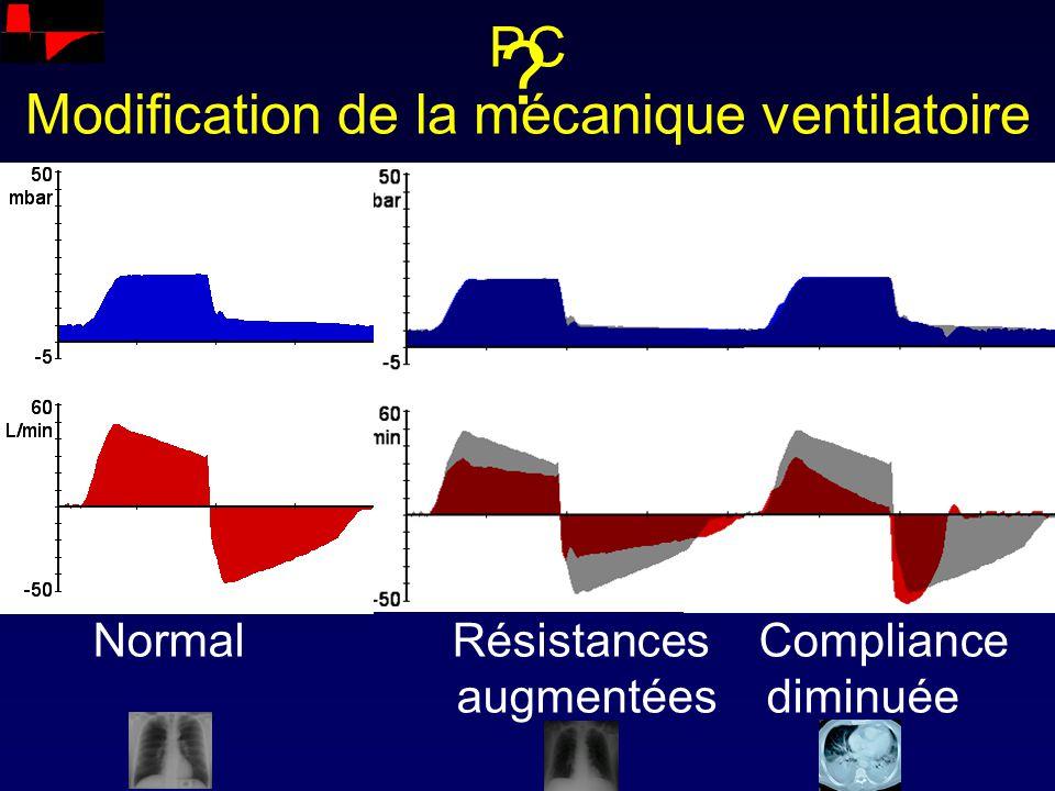 PC Modification de la mécanique ventilatoire Normal Résistances Compliance augmentées diminuée ?