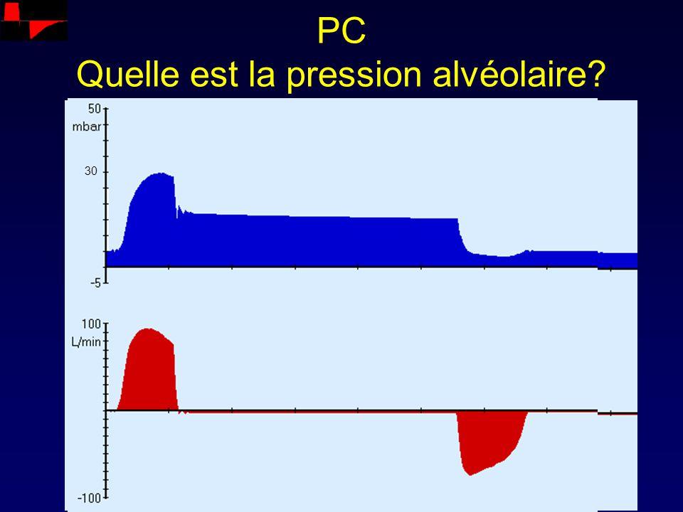PC Quelle est la pression alvéolaire? 30