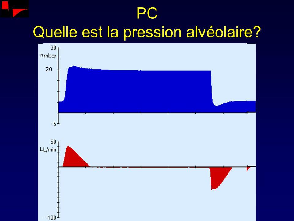 PC Quelle est la pression alvéolaire? 20