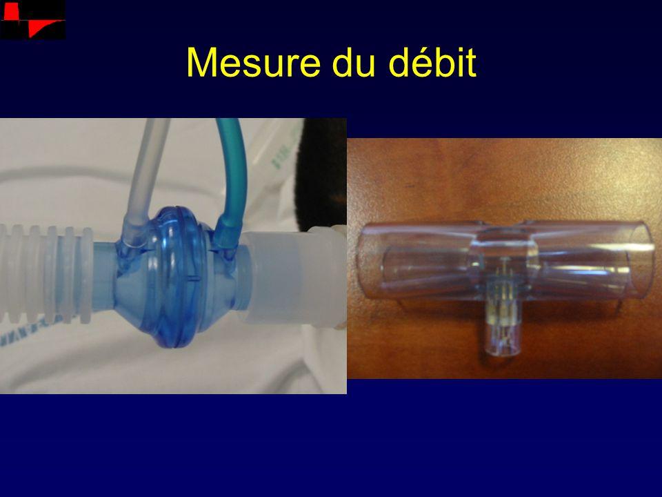 Débit Pression Temps Pression inspiratoire variable Dual mode cycle à cycle Pmax