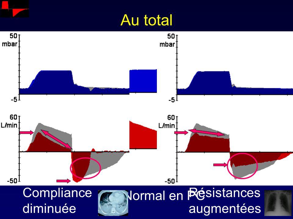 Au total Normal en PC Résistances augmentées Compliance diminuée