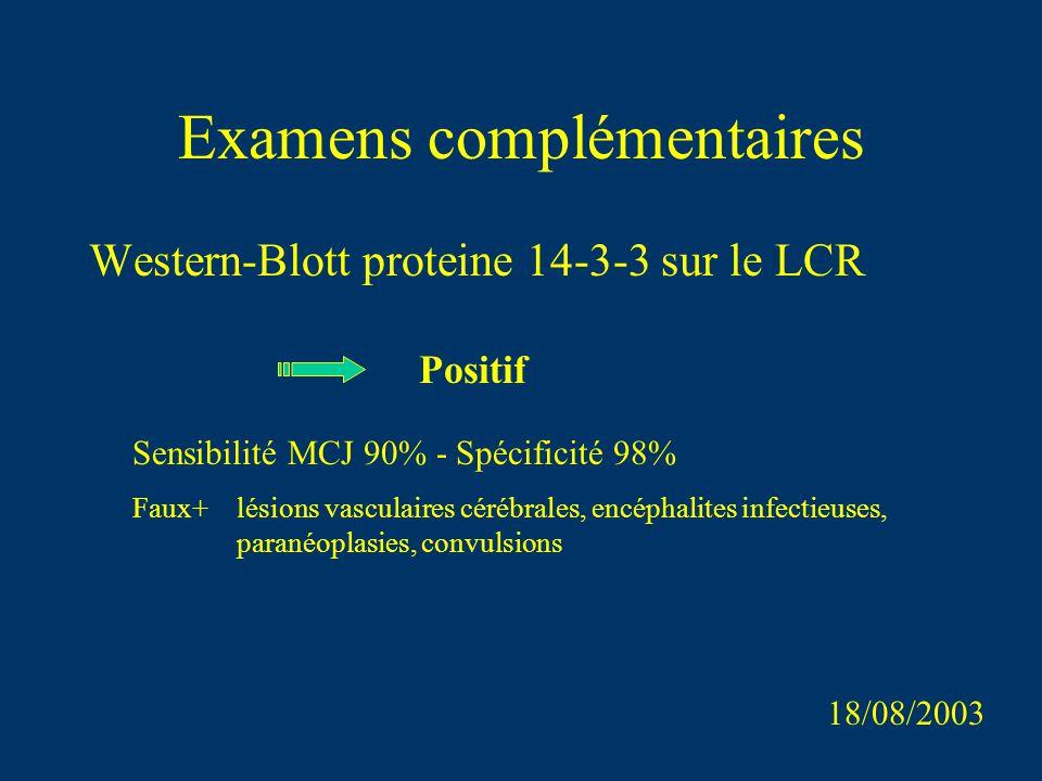 Examens complémentaires Western-Blott proteine 14-3-3 sur le LCR 18/08/2003 Positif Sensibilité MCJ 90% - Spécificité 98% Faux+lésions vasculaires cér