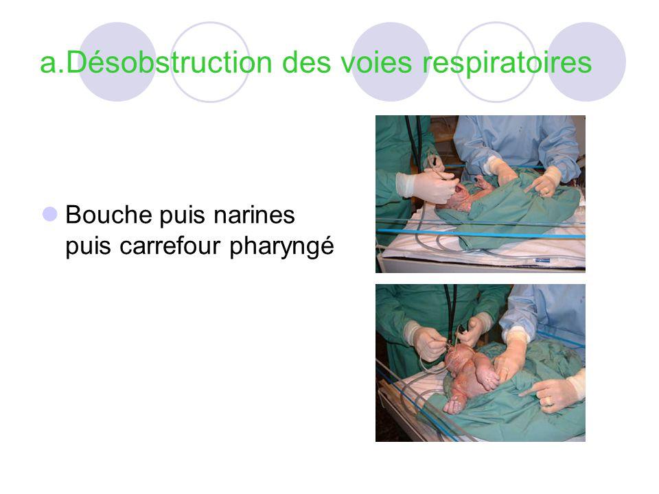 a.Désobstruction des voies respiratoires Bouche puis narines puis carrefour pharyngé