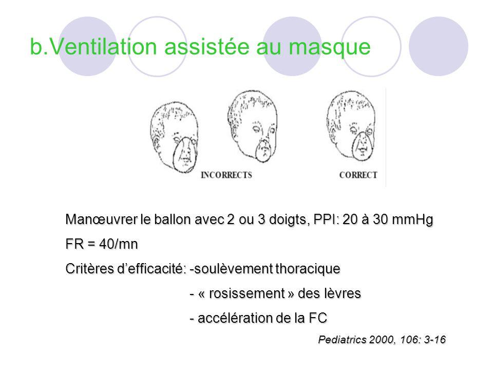 b.Ventilation assistée au masque Manœuvrer le ballon avec 2 ou 3 doigts, PPI: 20 à 30 mmHg FR = 40/mn Critères defficacité: -soulèvement thoracique - « rosissement » des lèvres - « rosissement » des lèvres - accélération de la FC - accélération de la FC Pediatrics 2000, 106: 3-16 Pediatrics 2000, 106: 3-16