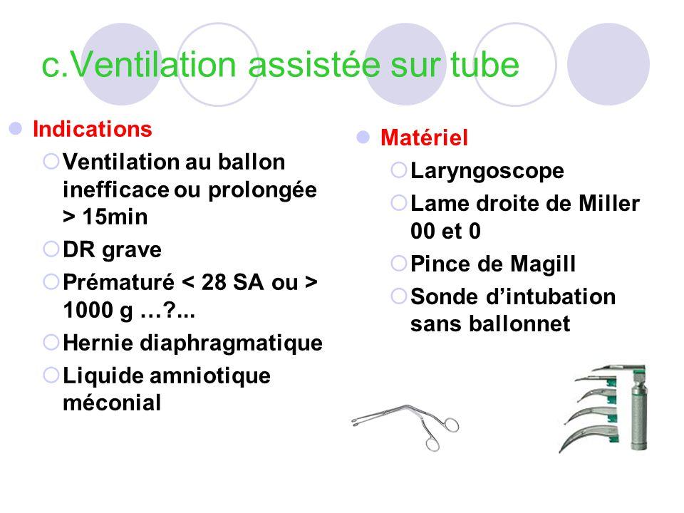 c.Ventilation assistée sur tube Indications Ventilation au ballon inefficace ou prolongée > 15min DR grave Prématuré 1000 g …?... Hernie diaphragmatiq