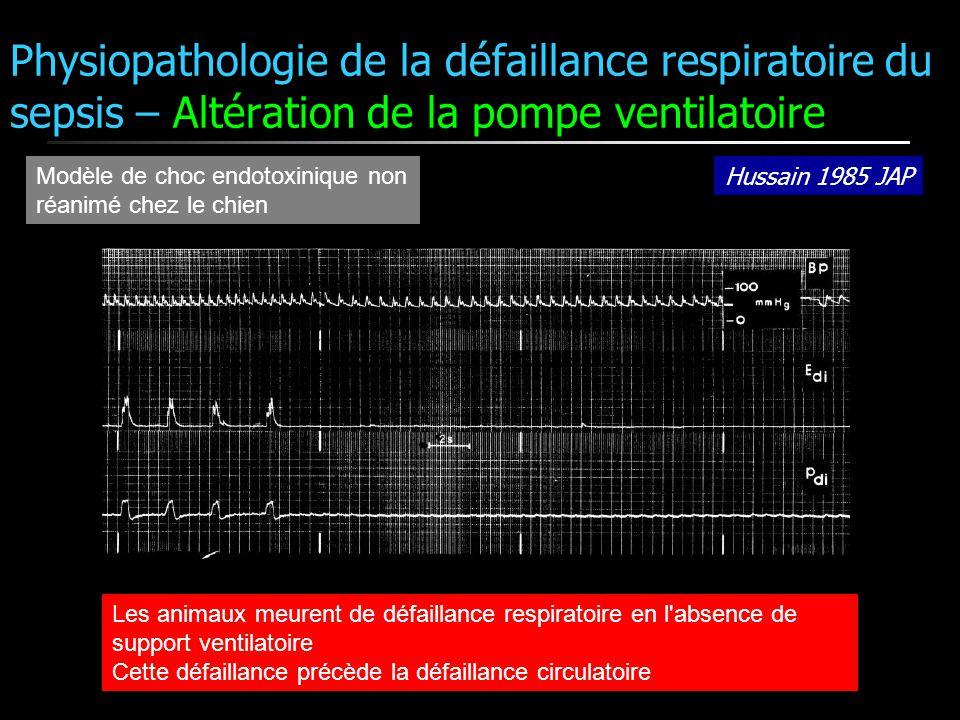 Physiopathologie de la défaillance respiratoire du sepsis – Altération de la pompe ventilatoire Hussain 1985 JAP Modèle de choc endotoxinique non réan