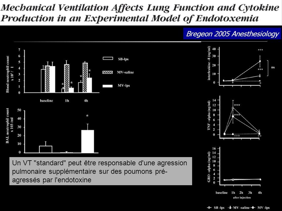 Bregeon 2005 Anesthesiology Un VT