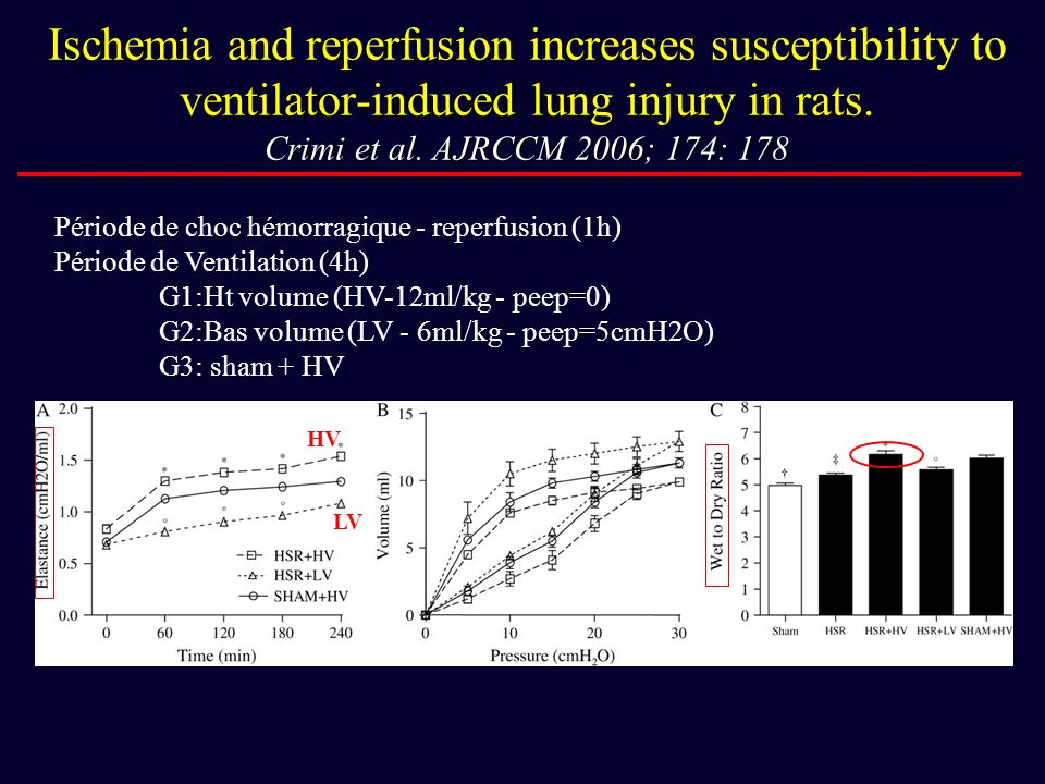 Ischemia and reperfusion increases susceptibility to ventilator-induced lung injury in rats. Crimi et al. AJRCCM 2006; 174: 178 Période de choc hémorr