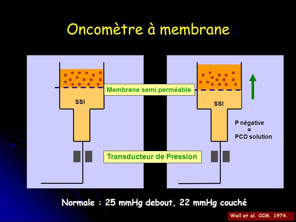 Oncomètre à membrane Transducteur de Pression Membrane semi perméable SSI P négative = PCO solution Normale : 25 mmHg debout, 22 mmHg couché Weil et a