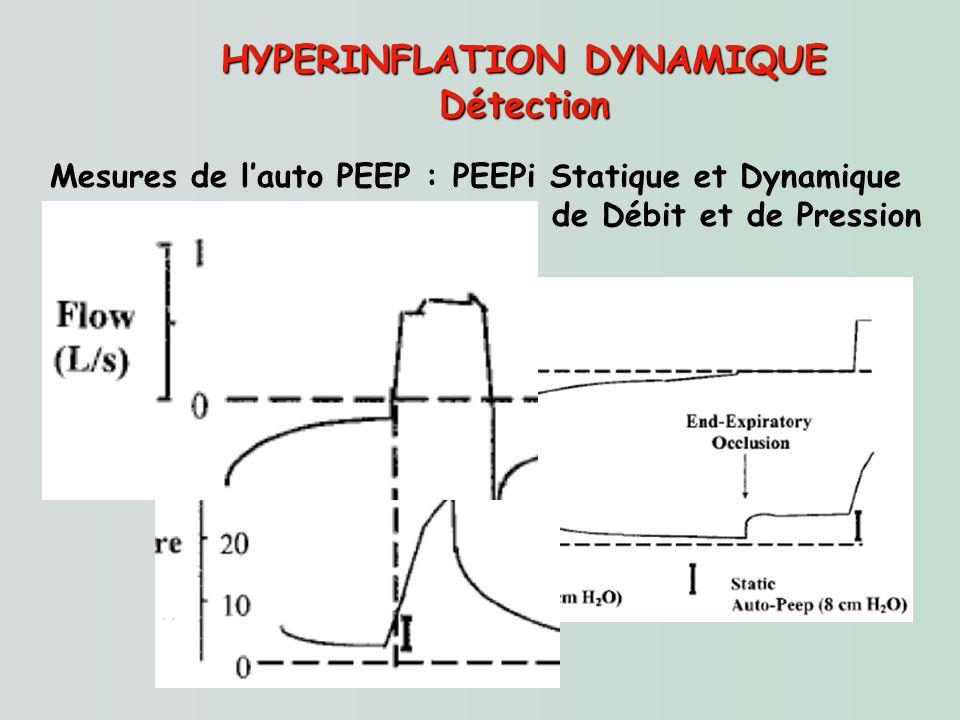 HYPERINFLATION DYNAMIQUE Détection Mesures de lauto PEEP : PEEPi Statique et Dynamique Correspondance sur les courbes de Débit et de Pression