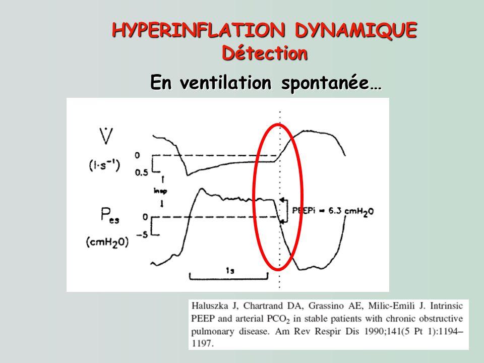 HYPERINFLATION DYNAMIQUE Détection En ventilation spontanée…