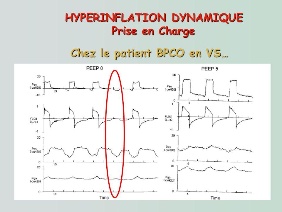 HYPERINFLATION DYNAMIQUE Prise en Charge Chez le patient BPCO en VS… Objectifs : réduire le travail respiratoire Optimiser la synchronisation patient/
