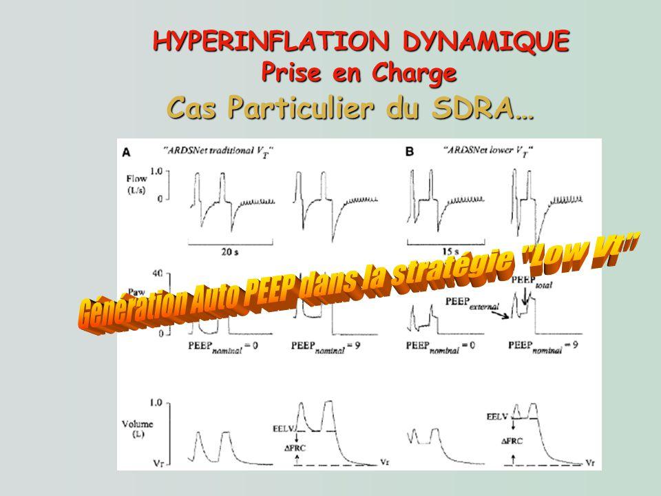 HYPERINFLATION DYNAMIQUE Prise en Charge Cas Particulier du SDRA…
