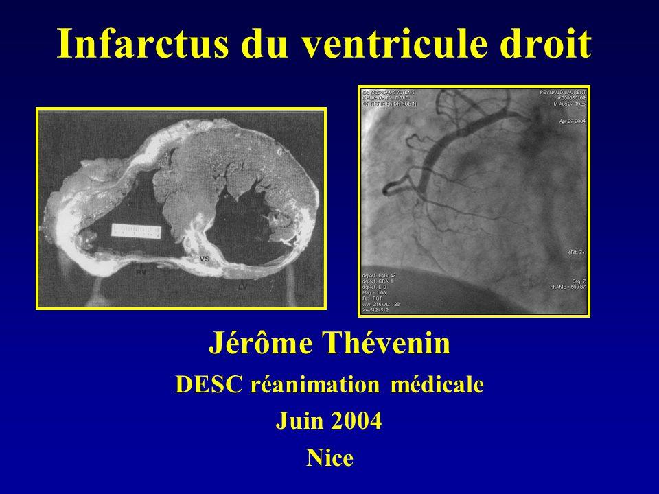 Infarctus du ventricule droit Jérôme Thévenin DESC réanimation médicale Juin 2004 Nice