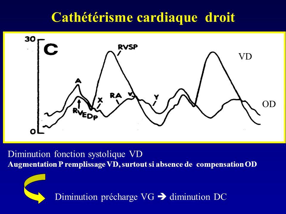 Cathétérisme cardiaque droit VD OD Diminution fonction systolique VD Augmentation P remplissage VD, surtout si absence de compensation OD Diminution p