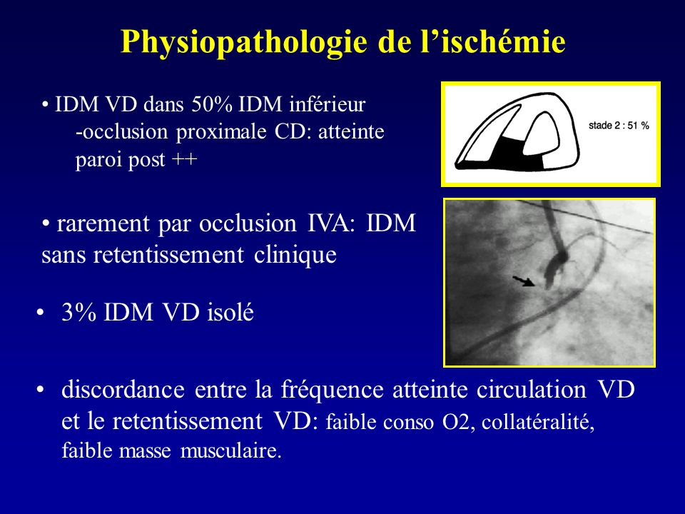 Physiopathologie de lischémie 3% IDM VD isolé discordance entre la fréquence atteinte circulation VD et le retentissement VD: faible conso O2, collaté