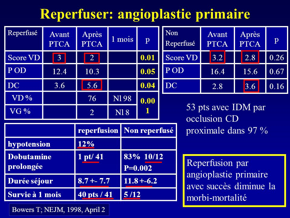 Reperfuser: angioplastie primaire Reperfusion par angioplastie primaire avec succès diminue la morbi-mortalité Bowers T; NEJM, 1998, April 2 Reperfusé