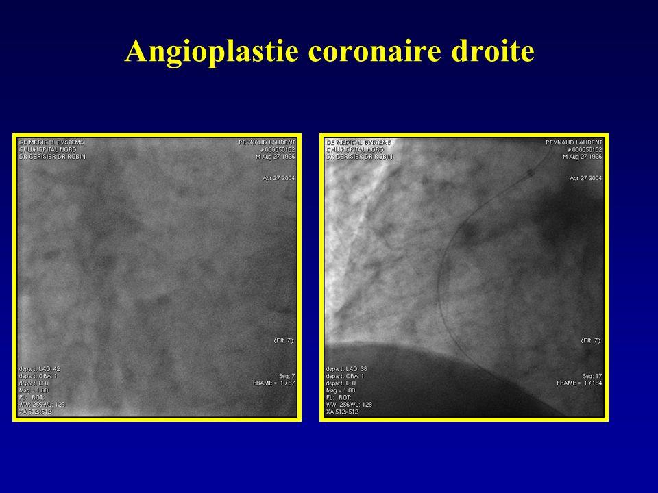 Angioplastie coronaire droite