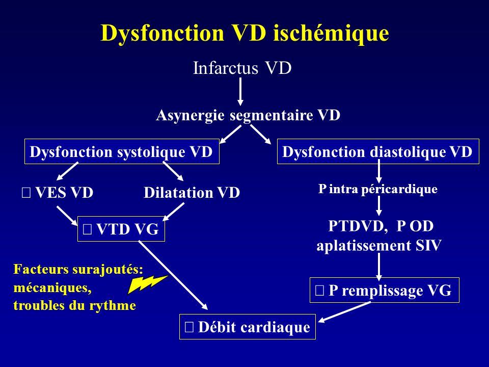 Dysfonction VD ischémique Asynergie segmentaire VD Dysfonction diastolique VD Infarctus VD VES VD P intra péricardique Débit cardiaque PTDVD, P OD apl
