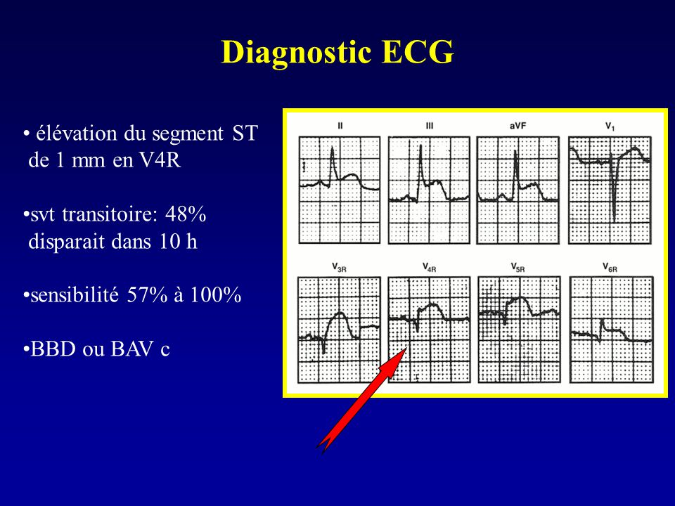 Diagnostic ECG élévation du segment ST de 1 mm en V4R svt transitoire: 48% disparait dans 10 h sensibilité 57% à 100% BBD ou BAV c