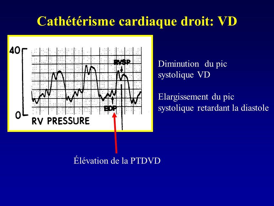Cathétérisme cardiaque droit: VD Élévation de la PTDVD Diminution du pic systolique VD Elargissement du pic systolique retardant la diastole