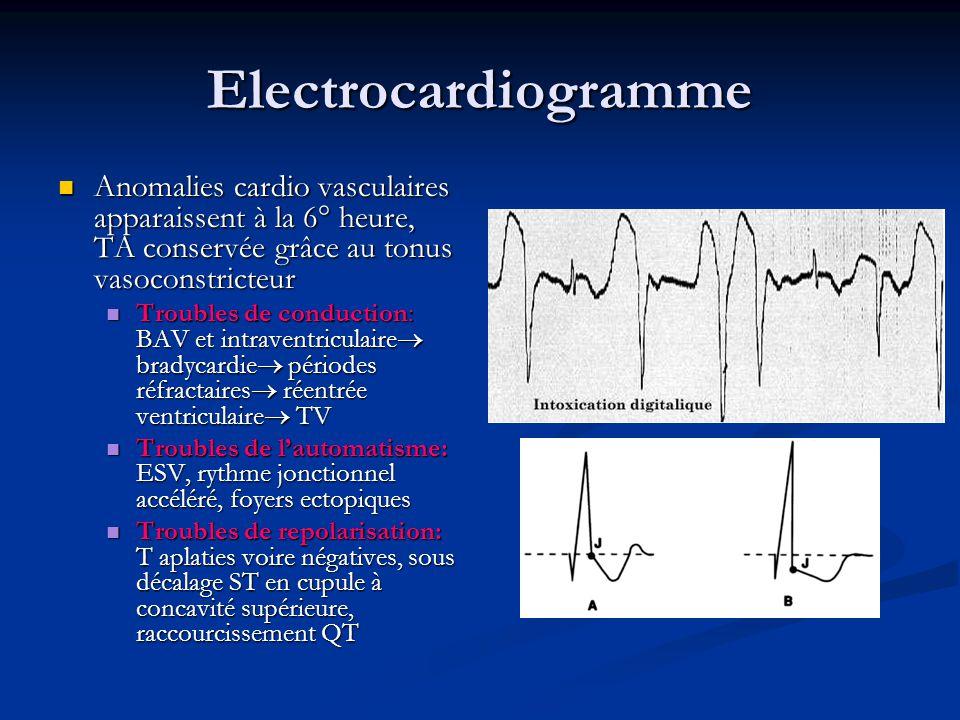Electrocardiogramme Anomalies cardio vasculaires apparaissent à la 6° heure, TA conservée grâce au tonus vasoconstricteur Anomalies cardio vasculaires apparaissent à la 6° heure, TA conservée grâce au tonus vasoconstricteur Troubles de conduction: BAV et intraventriculaire bradycardie périodes réfractaires réentrée ventriculaire TV Troubles de conduction: BAV et intraventriculaire bradycardie périodes réfractaires réentrée ventriculaire TV Troubles de lautomatisme: ESV, rythme jonctionnel accéléré, foyers ectopiques Troubles de lautomatisme: ESV, rythme jonctionnel accéléré, foyers ectopiques Troubles de repolarisation: T aplaties voire négatives, sous décalage ST en cupule à concavité supérieure, raccourcissement QT Troubles de repolarisation: T aplaties voire négatives, sous décalage ST en cupule à concavité supérieure, raccourcissement QT