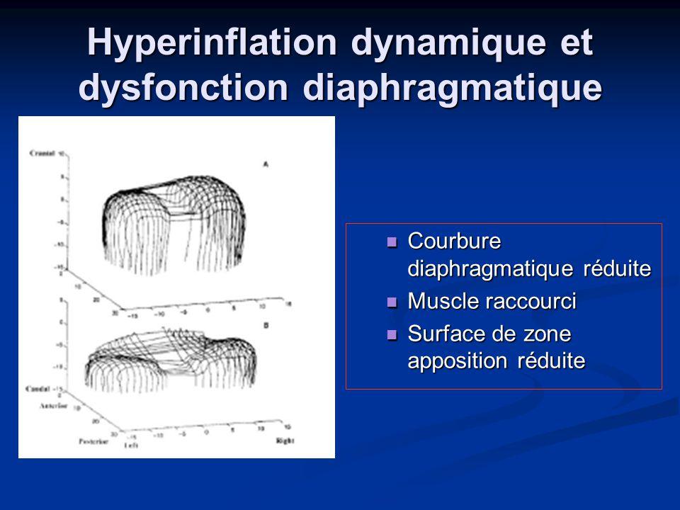 Hyperinflation dynamique et dysfonction diaphragmatique Courbure diaphragmatique réduite Muscle raccourci Surface de zone apposition réduite
