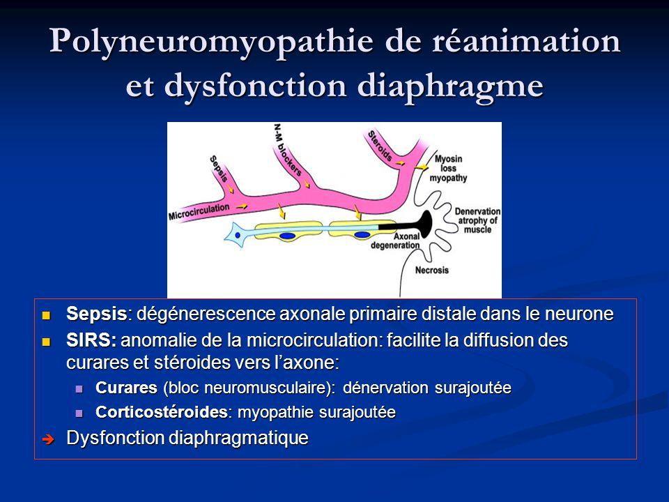 Polyneuromyopathie de réanimation et dysfonction diaphragme Sepsis: dégénerescence axonale primaire distale dans le neurone SIRS: anomalie de la micro