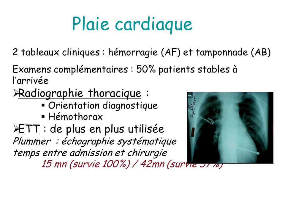 Plaie cardiaque 2 tableaux cliniques : hémorragie (AF) et tamponnade (AB) Examens complémentaires : 50% patients stables à larrivée Radiographie thora