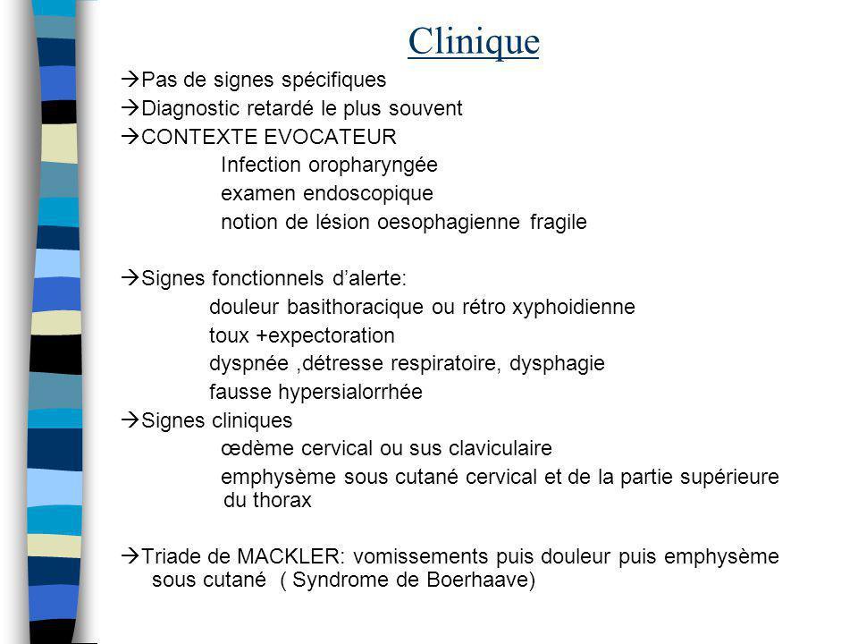 Clinique Pas de signes spécifiques Diagnostic retardé le plus souvent CONTEXTE EVOCATEUR Infection oropharyngée examen endoscopique notion de lésion o