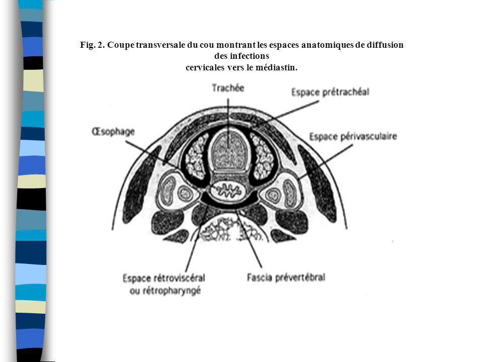Fig. 2. Coupe transversale du cou montrant les espaces anatomiques de diffusion des infections cervicales vers le médiastin.