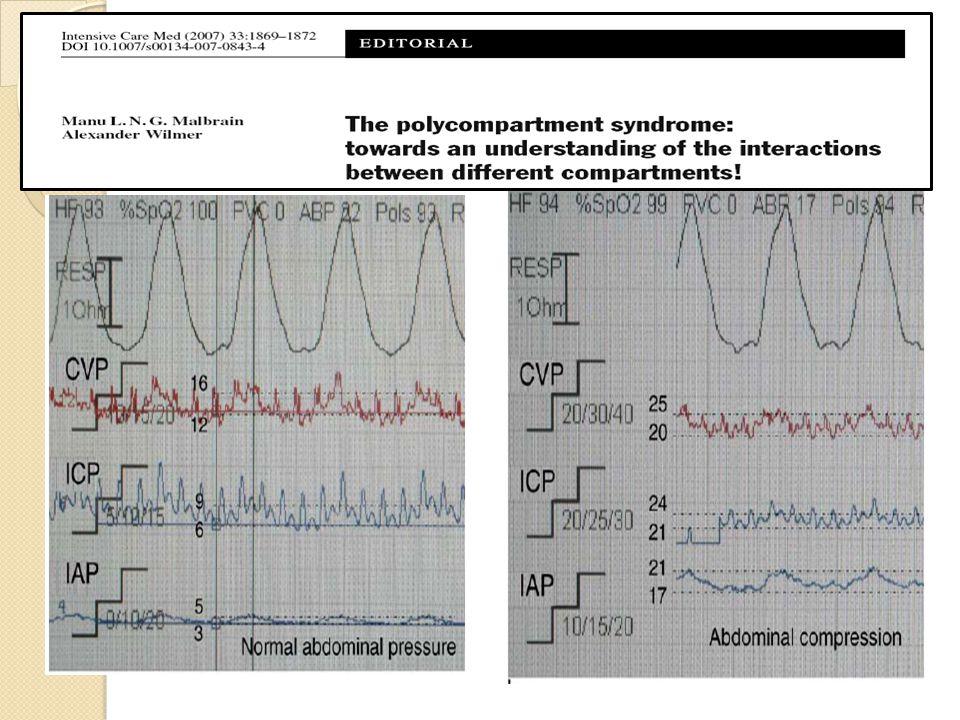 Conséquences pulmonaires Refoulement diaphragmatique, CPT, compliance système respi, VT, travail respiratoire, P ins sous ventilation mécanique, hypoxémie, hypercapnie SDRA: HIA et PAPO > 18 mmHg HTAP: par pression thoracique et compression directe vasculaire, défaillance VD Risque doedeme pulmonaire Position décubitus ventral: augmente la PIA Le réglage de la Pplat et de la PEP devrait tenir compte de la valeur de PIA : best-PEP = PIA Pplat réelle = Pplat respirateurPIA/2 Index de transmission = 50% De Keulenaer BL.