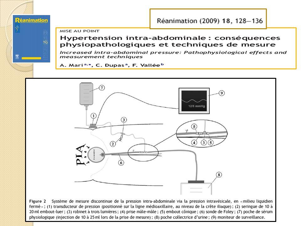 Recommandations mesure PIV WSACS ICM 2006