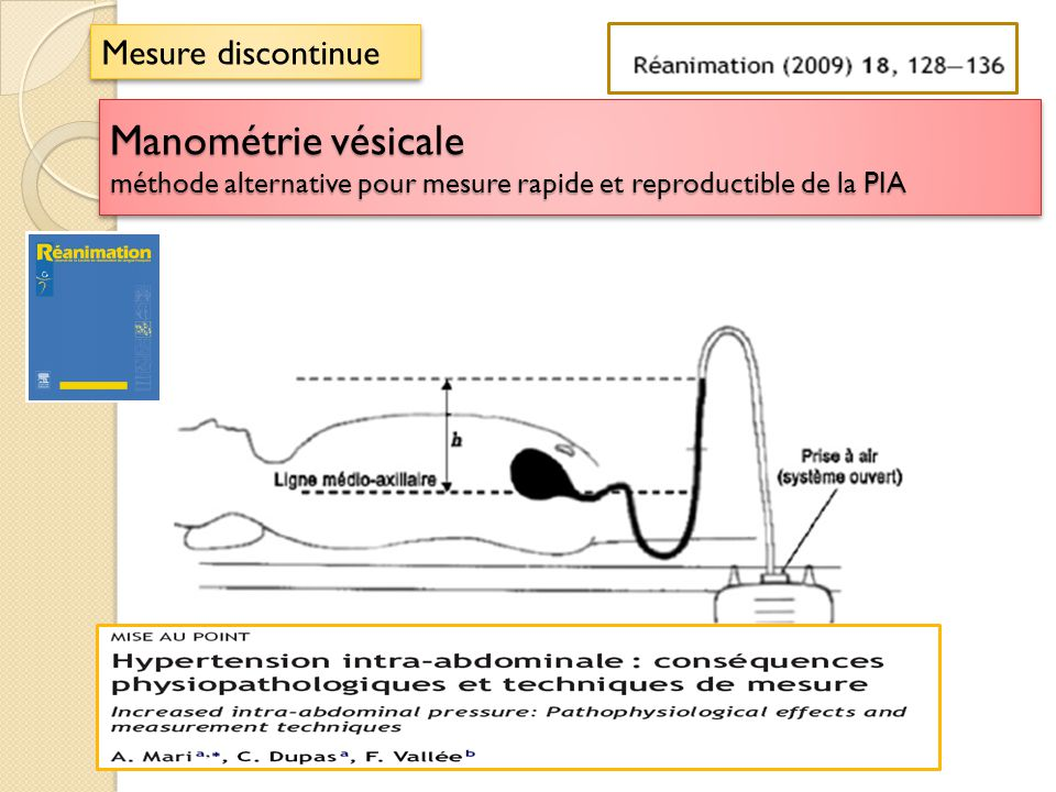 Manométrie vésicale méthode alternative pour mesure rapide et reproductible de la PIA Mesure discontinue