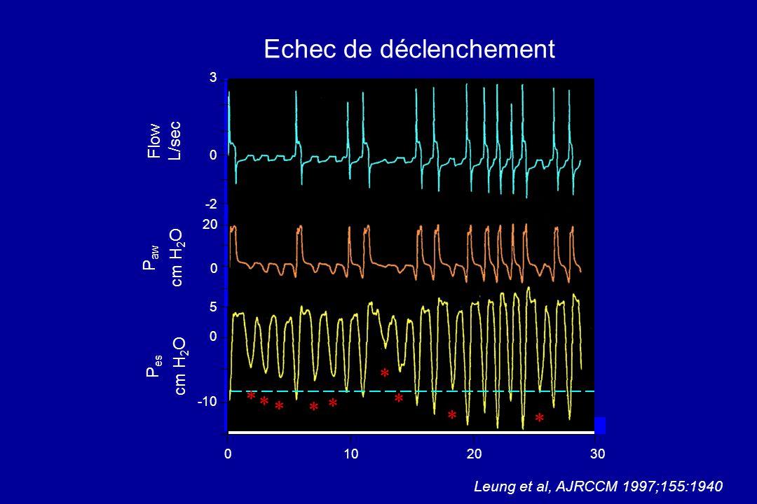 Echec de déclenchement 1030 Flow L/sec P aw cm H 2 O P es cm H 2 O 20 3 0 -2 20 0 5 0 -10 0 Leung et al, AJRCCM 1997;155:1940 * * * * * * * * *