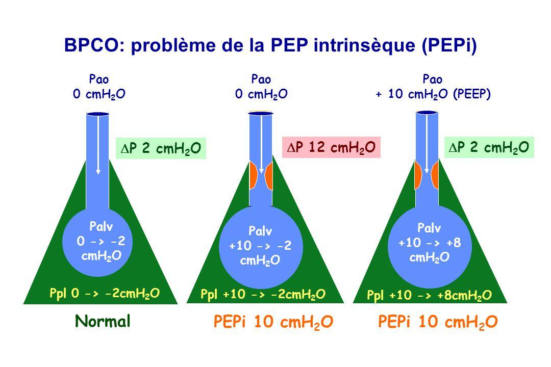 BPCO: problème de la PEP intrinsèque (PEPi) Pao 0 cmH 2 O Pao 0 cmH 2 O Ppl 0 -> -2cmH 2 O Ppl +10 -> -2cmH 2 O Normal PEPi 10 cmH 2 O P 2 cmH 2 O P 12 cmH 2 O Palv +10 -> -2 cmH 2 O Palv 0 -> -2 cmH 2 O Pao + 10 cmH 2 O (PEEP) Ppl +10 -> +8cmH 2 O PEPi 10 cmH 2 O P 2 cmH 2 O Palv +10 -> +8 cmH 2 O