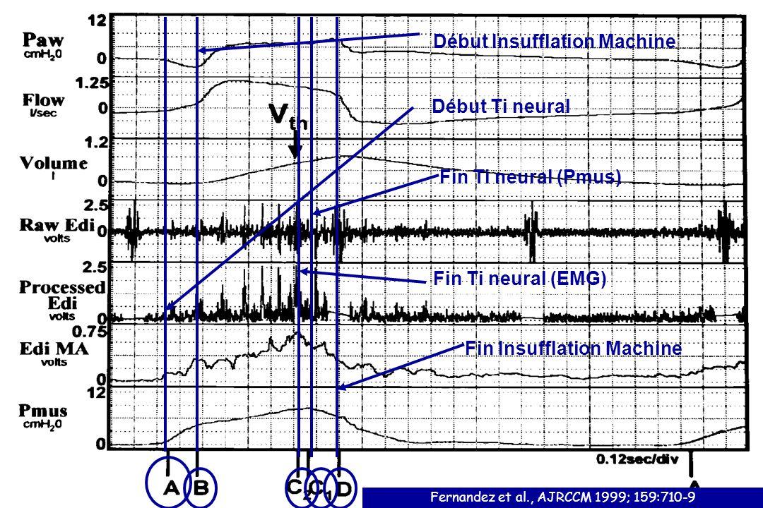 Début Ti neural Début Insufflation Machine Fin Ti neural (Pmus) Fin Ti neural (EMG) Fin Insufflation Machine Fernandez et al., AJRCCM 1999; 159:710-9
