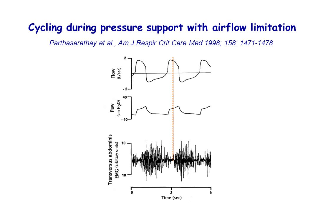 Cycling during pressure support with airflow limitation Parthasarathay et al., Am J Respir Crit Care Med 1998; 158: 1471-1478