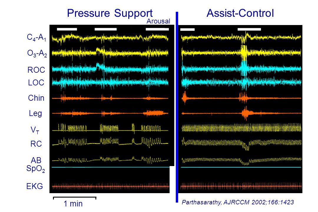 1 min Parthasarathy, AJRCCM 2002;166:1423 C 4 -A 1 O 3 -A 2 ROC LOC Chin Leg VTVT RC AB SpO 2 EKG Assist-ControlPressure Support Arousal