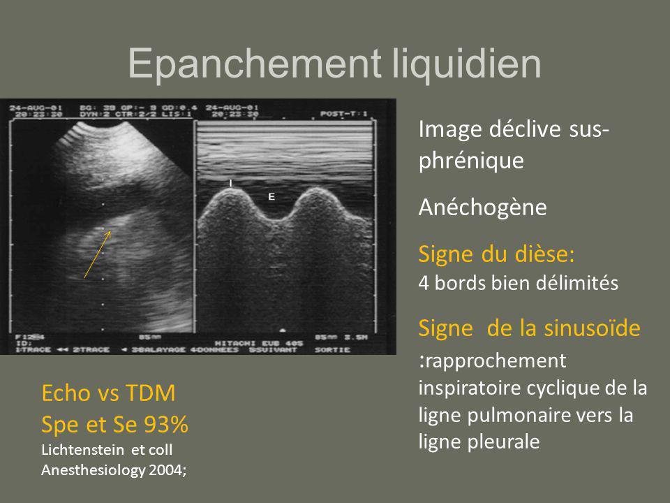 Epanchement liquidien Image déclive sus- phrénique Anéchogène Signe du dièse: 4 bords bien délimités Signe de la sinusoïde : rapprochement inspiratoir